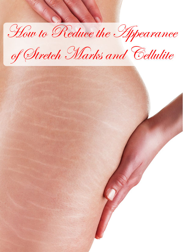 How-to-Reduce-the-Appearance-of-Stretch-Marks-and-Cellulite