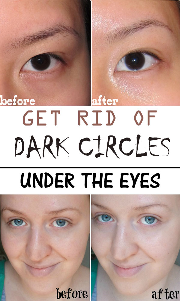The-best-solutions-to-reduce-dark-circles-under-the-eyes1